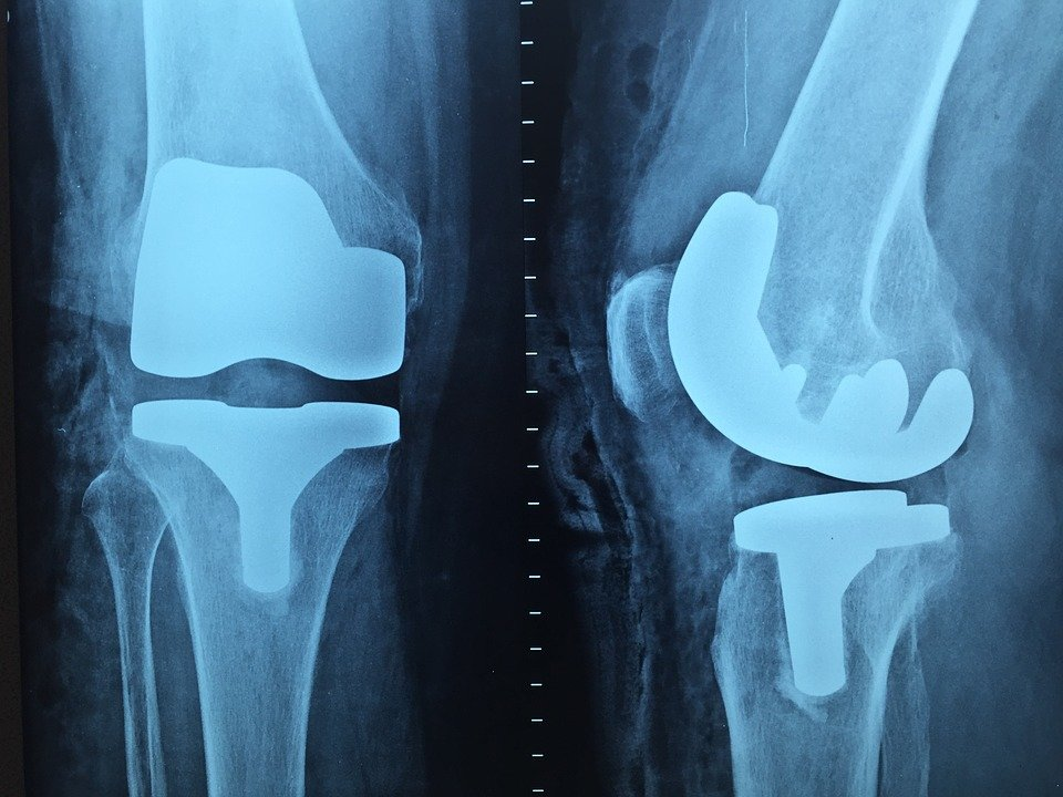 Протезирование суставов в новокузнецке что такое плексит плечевого сустава
