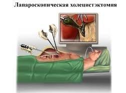 фотография Операции на желчном пузыре и желчных протоках