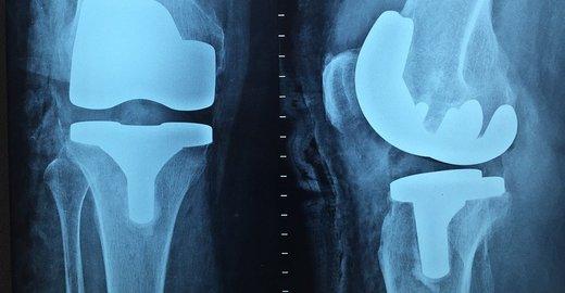 Магнитно резонансная томография коленного сустава в районе метро щелковская остеопатия дисплазия тазобедренных суставов