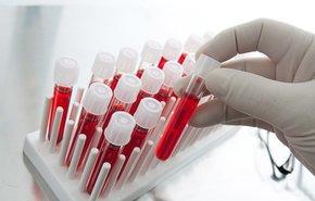 фотография Анализ на антитела IgM к вирусу Эпштейна-Барр