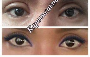 фотография Коррекция азиатского разреза глаз