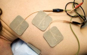 фотография Электростимуляция мышц (электромиостимуляция)