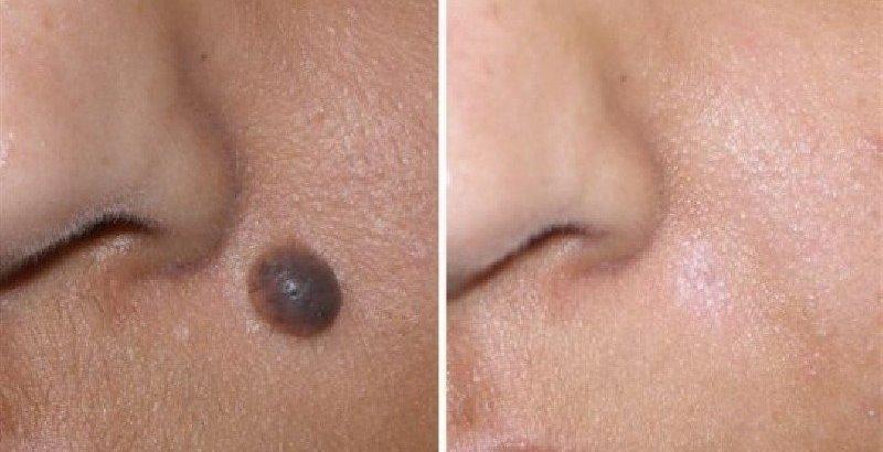 До и после удаления лазером родинки на лице