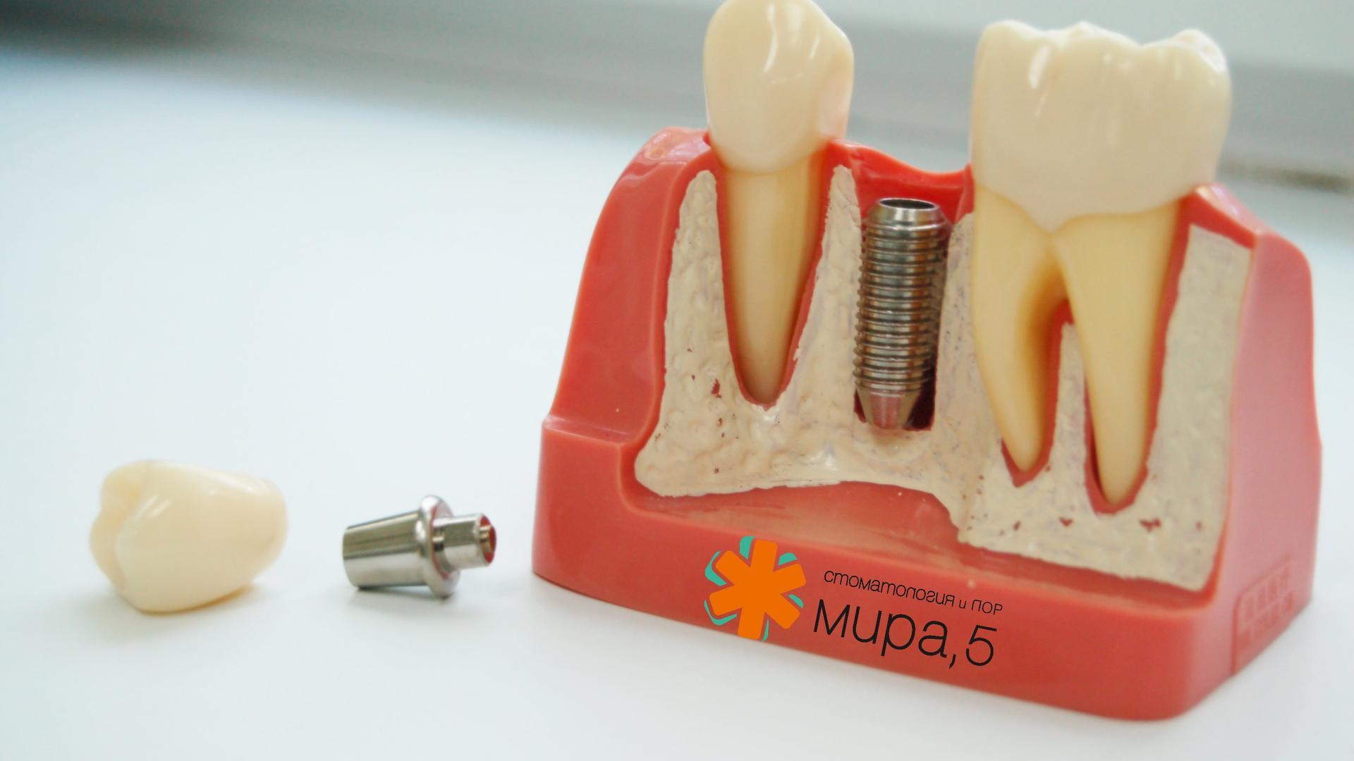 имплантация зубов на проспекте мира законопроекты