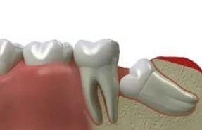 фотография Удаление ретинированного зуба