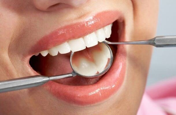 Фотогалерея - Astra Dent Стоматологическая Клиника.