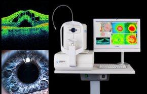 фотография Оптические исследования в офтальмологии