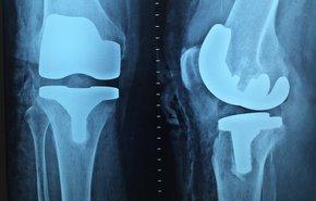 Замена тазобедренного сустава в нижнем новгороде цена болит колено после вывиха