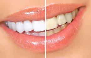 фотография Лазерное отбеливание зубов