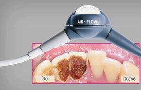 фотография Чистка зубов аппаратом «Air-flow»
