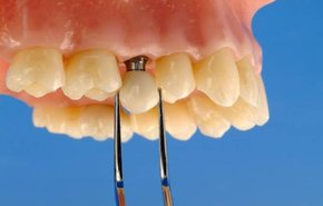 фотография Коронки с опорой на имплантат